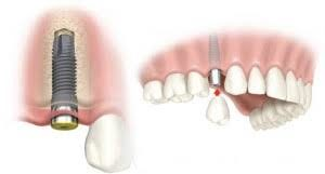 Dental implant for replacing a missing tooth