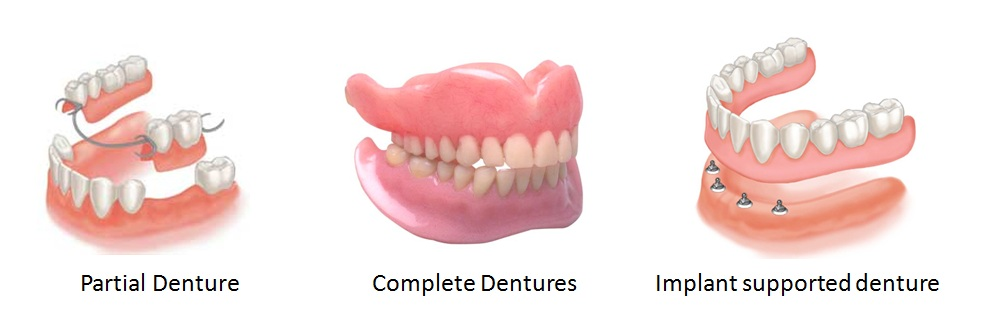 Partial vs full denture - Fixed or removable dentures