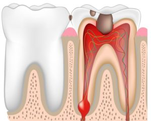 Chronic Dental Infections