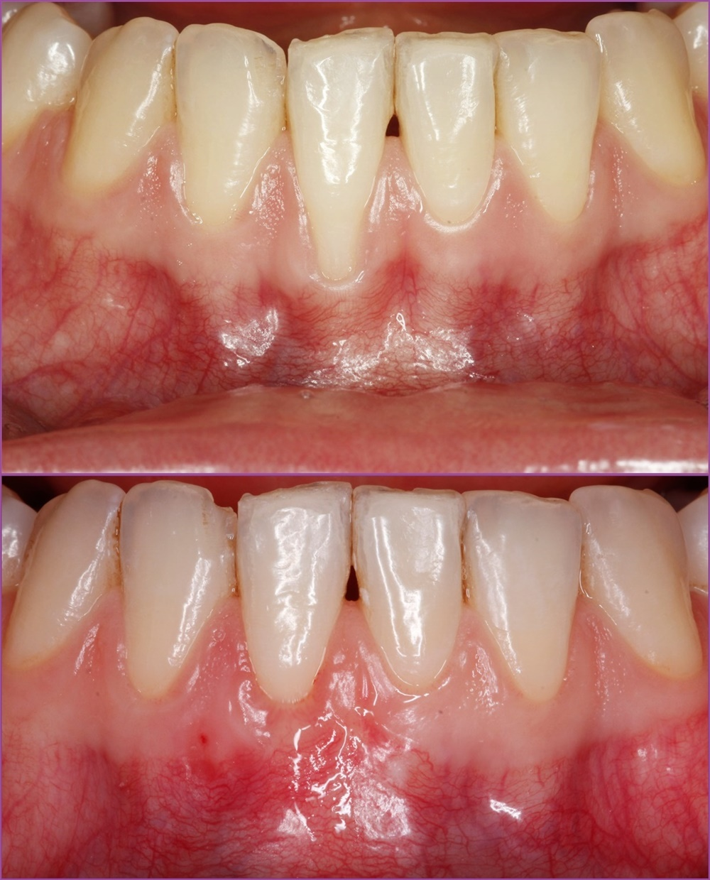 Gum Recession Treatment with Connective Tissue Transplant